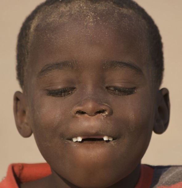 Himba boy missing two front teeth at Purros Himba tribe village, Namibia.